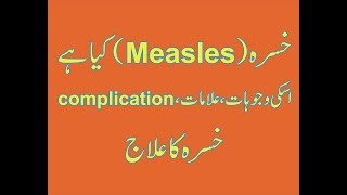 What Is Measles(Khasra)?|Explained--Measles Causes ,Sign&Symptoms,Complication,Treatment amir Health