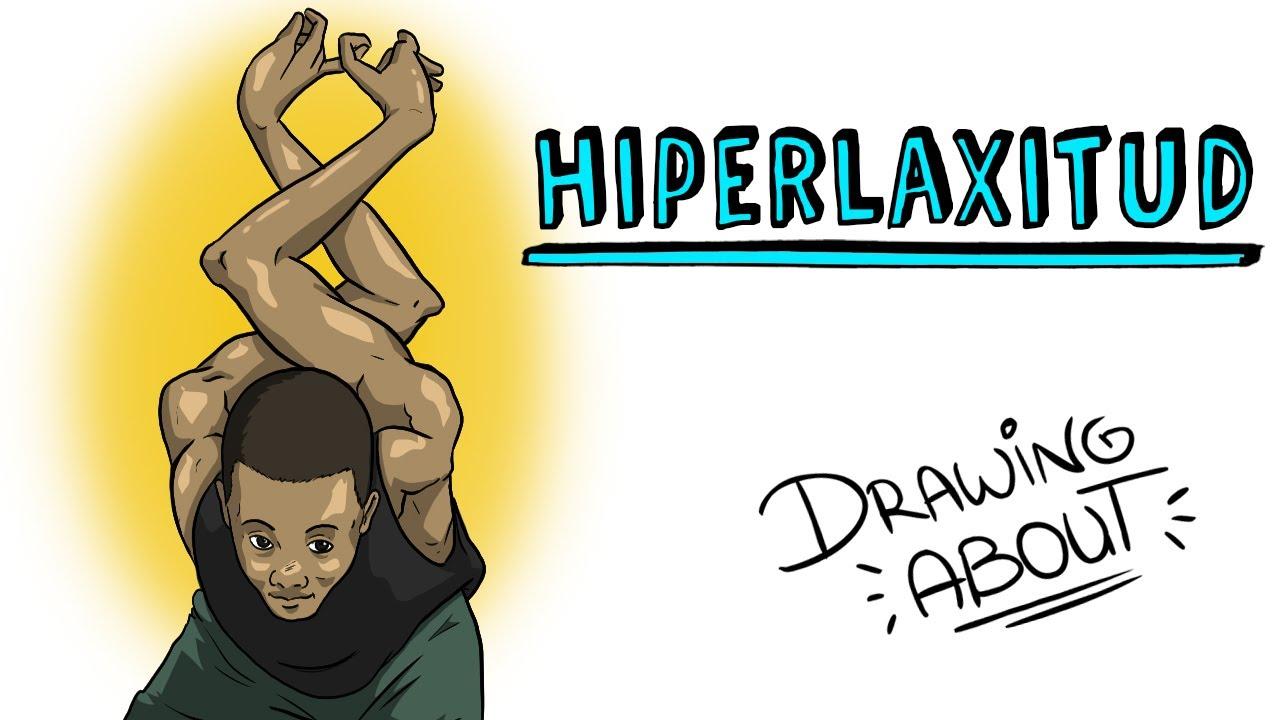 HIPERLAXITUD | Draw My Life