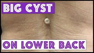 BIG cyst on lower back!