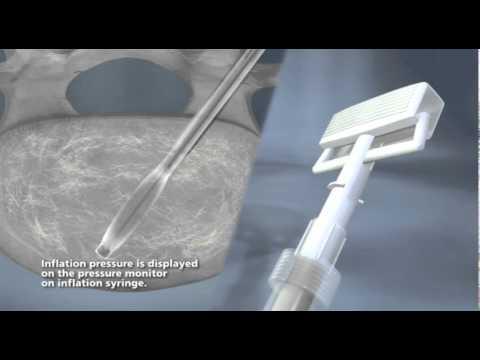CareFusion - AVAmax Balloon Marketing Video