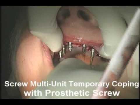 All On  Dental Implants Long Island