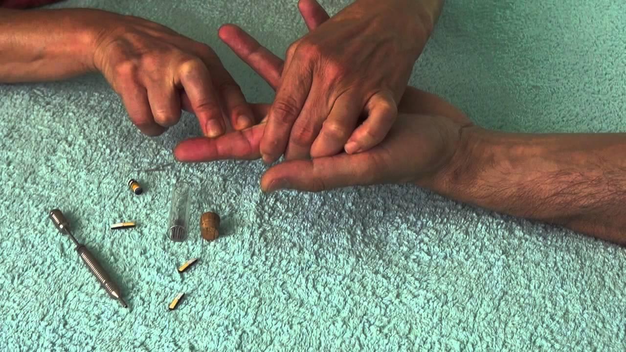 eszközök a visszerek megelőzésére a lábakon vaszkuláris kezelés és visszérgyógyszerek