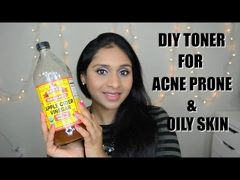hqdefault - Home Remedy For Oily Acne Prone Skin
