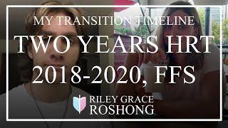 Transition Timeline (Transgender MtF 22, 1.5 years HRT, FFS) YouTube Videos