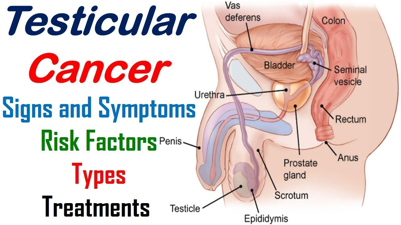 Testicular Cancer - Signs, Symptoms, Risk Factors, Types and ...