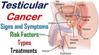 Testicular Cancer - Signs, Symptoms, Risk Factors, Types and Treatments - Cancer Knowledge