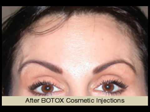BOTOX Cosmetic Injections in Orlando | Medical Spa