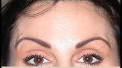 BOTOX Cosmetic Injections in Orlando   Medical Spa