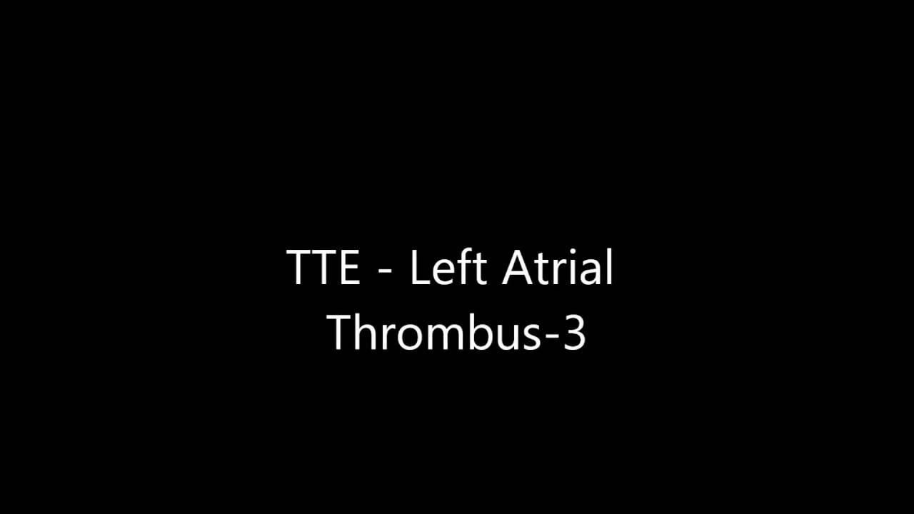Left atrial thrombus transthoracic echocardiogram tte for Atrial mural thrombus