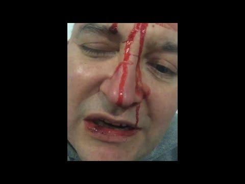 El cantante Leo García sufrió un ataque homofóbico en General Rodríguez