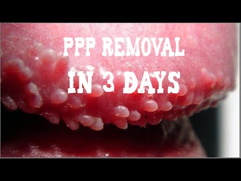 PPP (White Bumps on Penis) Removal | Natural Skin Treatment