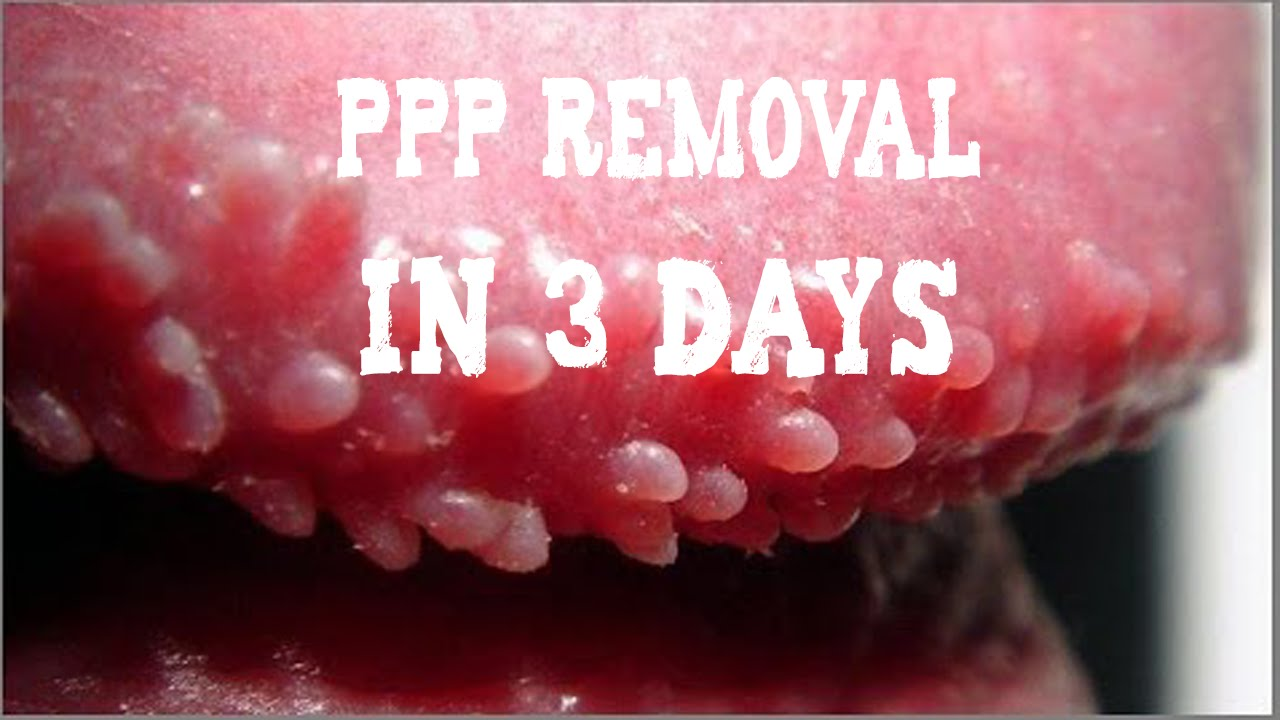 Ppp White Bumps On Penis Removal Natural Skin Treatment Youtube