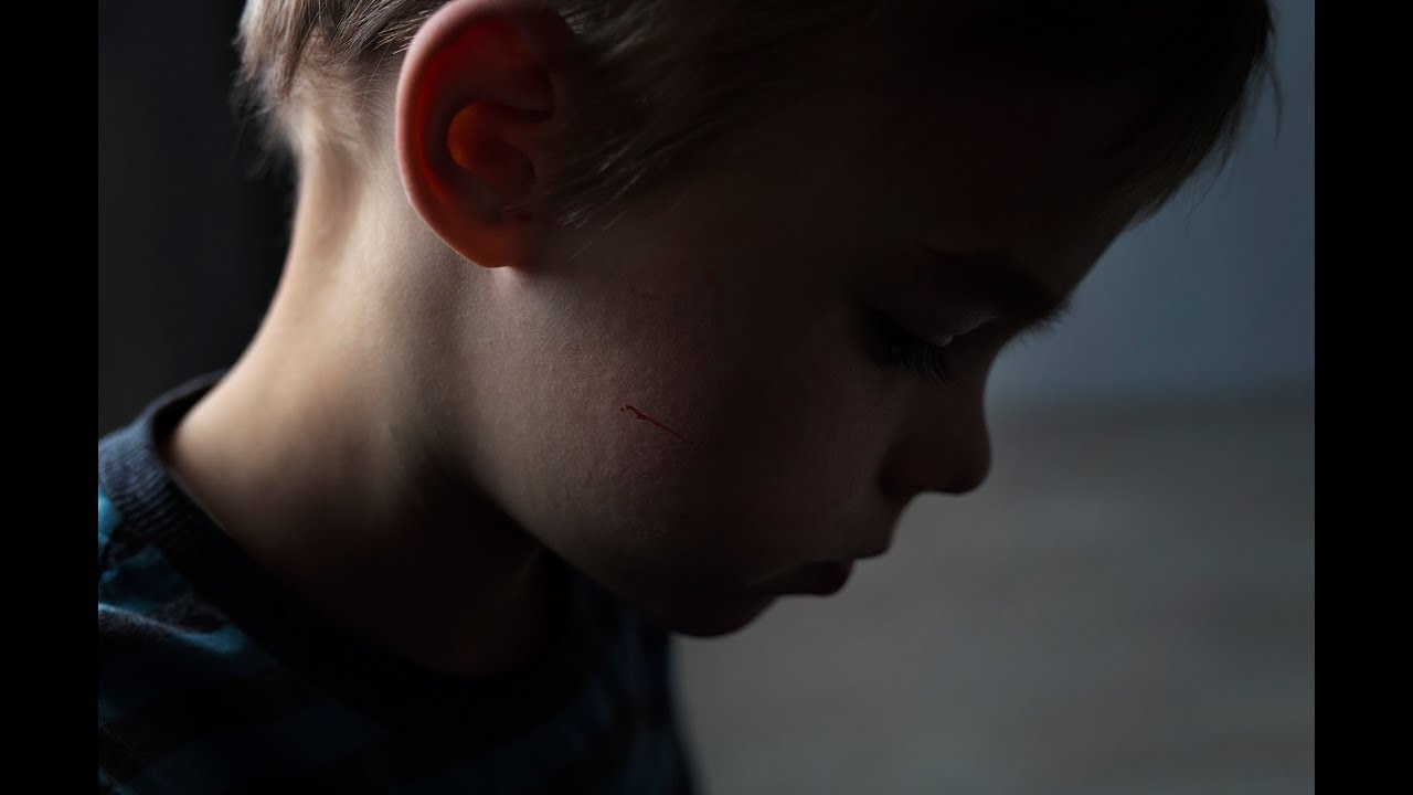 Toxic Stress Can Harm Your Child >> Opinion Too Many Children With Toxic Stress Are Being Misdiagnosed