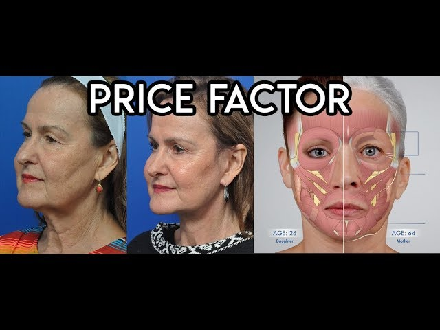 Price Factor