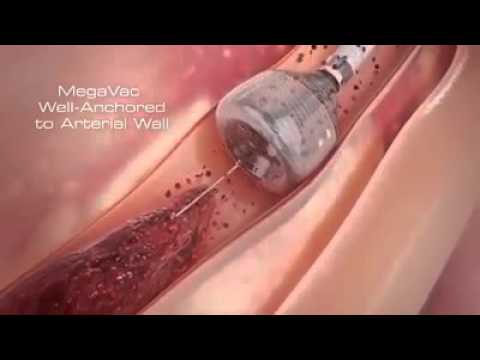 Removing Blood Clot From the Artery or Veins