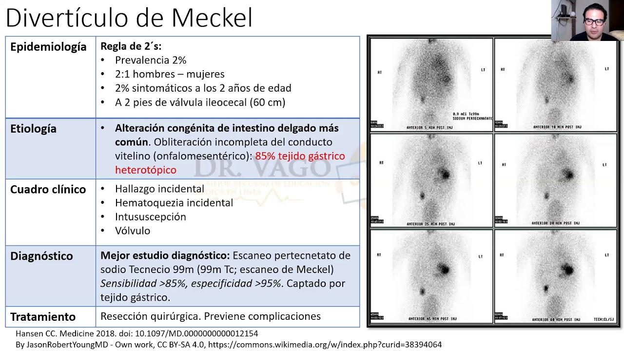 ¡Divertículo de Meckel Vs. las medidas IMPERIALES! #ENARM