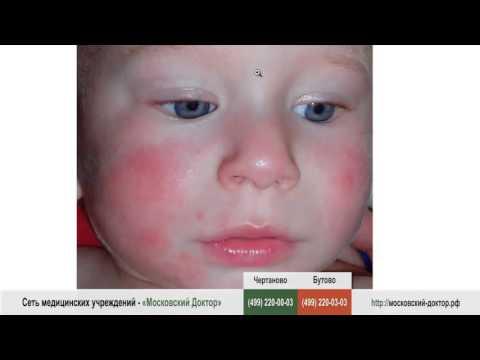 Какие продукты можно кушать при аллергии — Все про аллергию