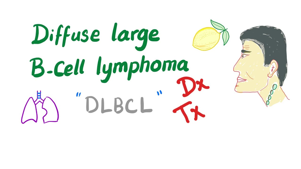 Diffuse Large B-Cell Lymphoma Diagnosis& Treatment