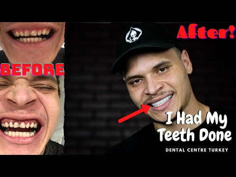 I Had My Teeth Done Overseas (Dental Centre Turkey) *Honest Experience