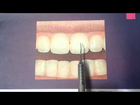 Characteristics of Maxillary Central & Lateral Incisors