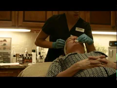 Procedures - Chemical Peel