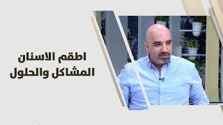 د. خالد عبيدات - اطقم الاسنان .. المشاكل والحلول