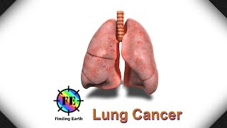 Lung Cancer - Symptom, Causes & Diagnosis (Finding Earth)