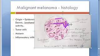 Malignant Melanoma State of the Art – Mucosal Melanoma.