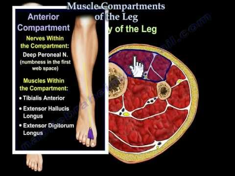 Compartment syndrome: what it is and how to treat it