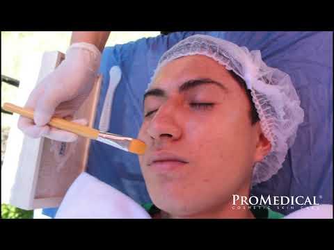 ProMedical Limpieza Facial Profunda