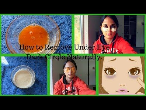 काले घेरे को कैसे कम करे, Magical DIY Herbal remedies for under eye dark circles& puffiness.