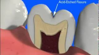 Dental Sealants Thumbnail