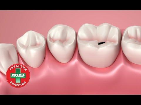 Стоматология ЛОДЭ: Лечение поверхностного кариеса.