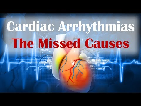 Cardiac Arrhythmias - The Missed Cause