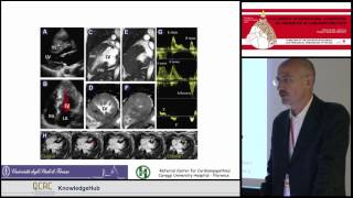 I Olivotto - Management of HCM: the case for disease staging