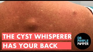 The Cyst Whisperer Has Your Back