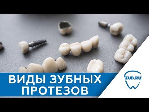 Современное протезирование зубов. Виды зубных протезов