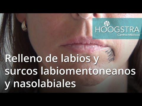 Relleno de labios y surcos labiomentoneanos y nasolabiales (16036)