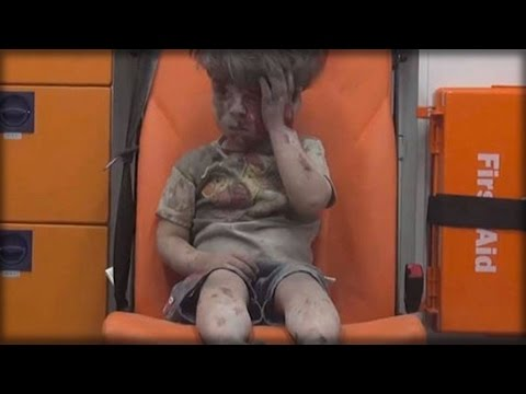 HOAX? CHINA ACCUSES THE WEST FOR FAKING FAMOUS PHOTO OF BLOODIED SYRIAN BOY