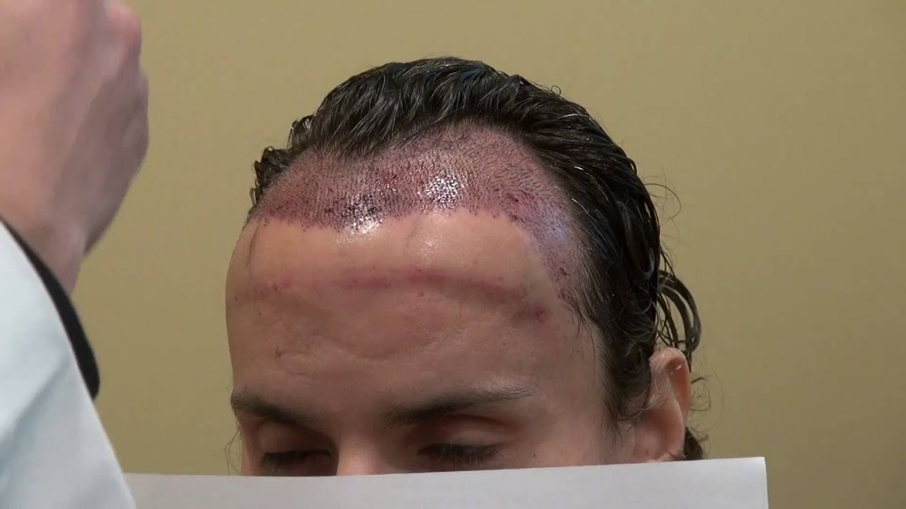 Something No sex day after hair transplant