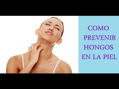 Como prevenir y eliminar hongos en la piel remedios - Como quitar hongos de la pared ...