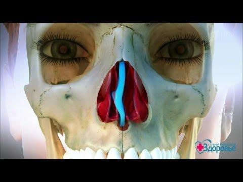 Перегородка в носу болит