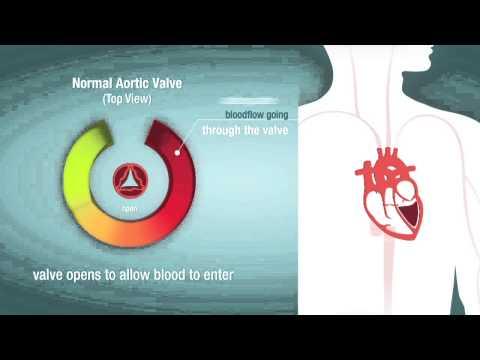 Valve Stenosis: When a Heart Valve is Too Narrow