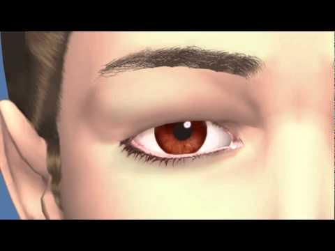 Eyelid Dermatochalasis