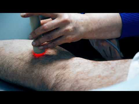 Лечение варикоза вен. Метод лазерной терапии