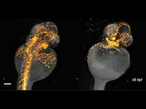 Beautiful imaging of zebrafish development