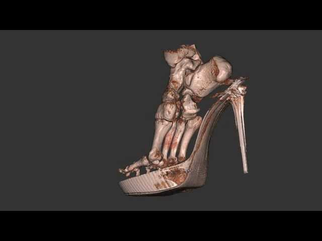 4e4562d3ff2 Kim Kardashian s killer heels  New scan shows the real damage those  stilettos are doing