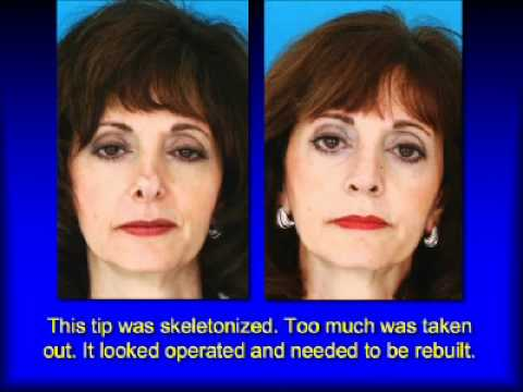 Revision Rhinoplasty: The Tip of the Nose - by Rhinoplasty ...