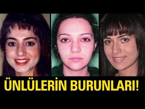 İyi ki Burun Estetiği Olmuş Diyeceğiniz 20 Türk Ünlü thumbnail