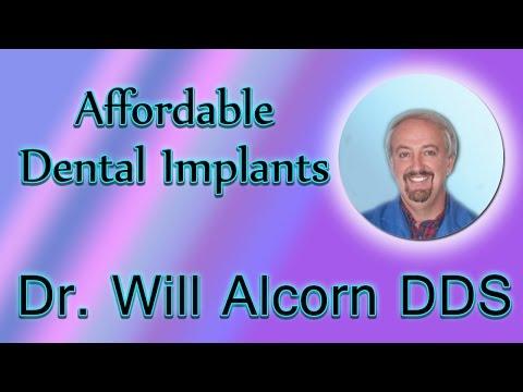 Affordable Dental Implants Shelbyville TN| Implant Dentist Shelbyville TN| Dr. Will Alcorn